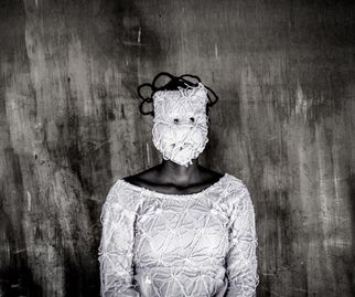 Margaret Ngigi, 22, Disfigured, photo